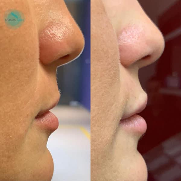 Filler Labbra laterale - Shibumi Med Torino