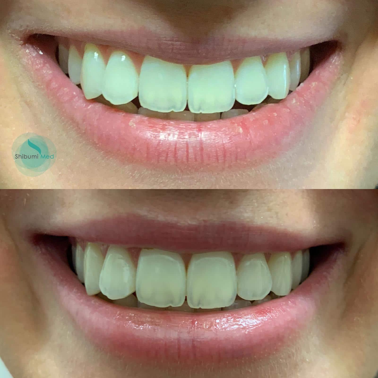 Filler Labbra sorriso - Shibumi Med Torino