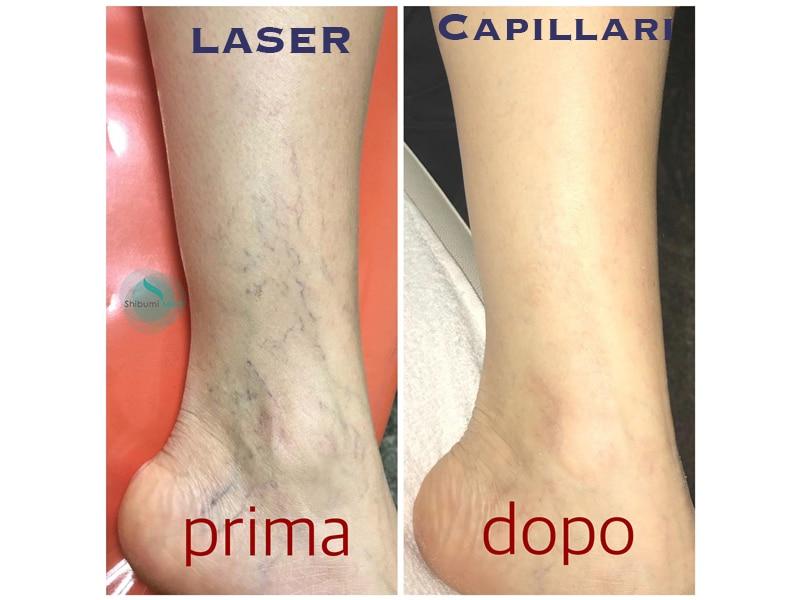 Laser Capillari - ShibumiMed