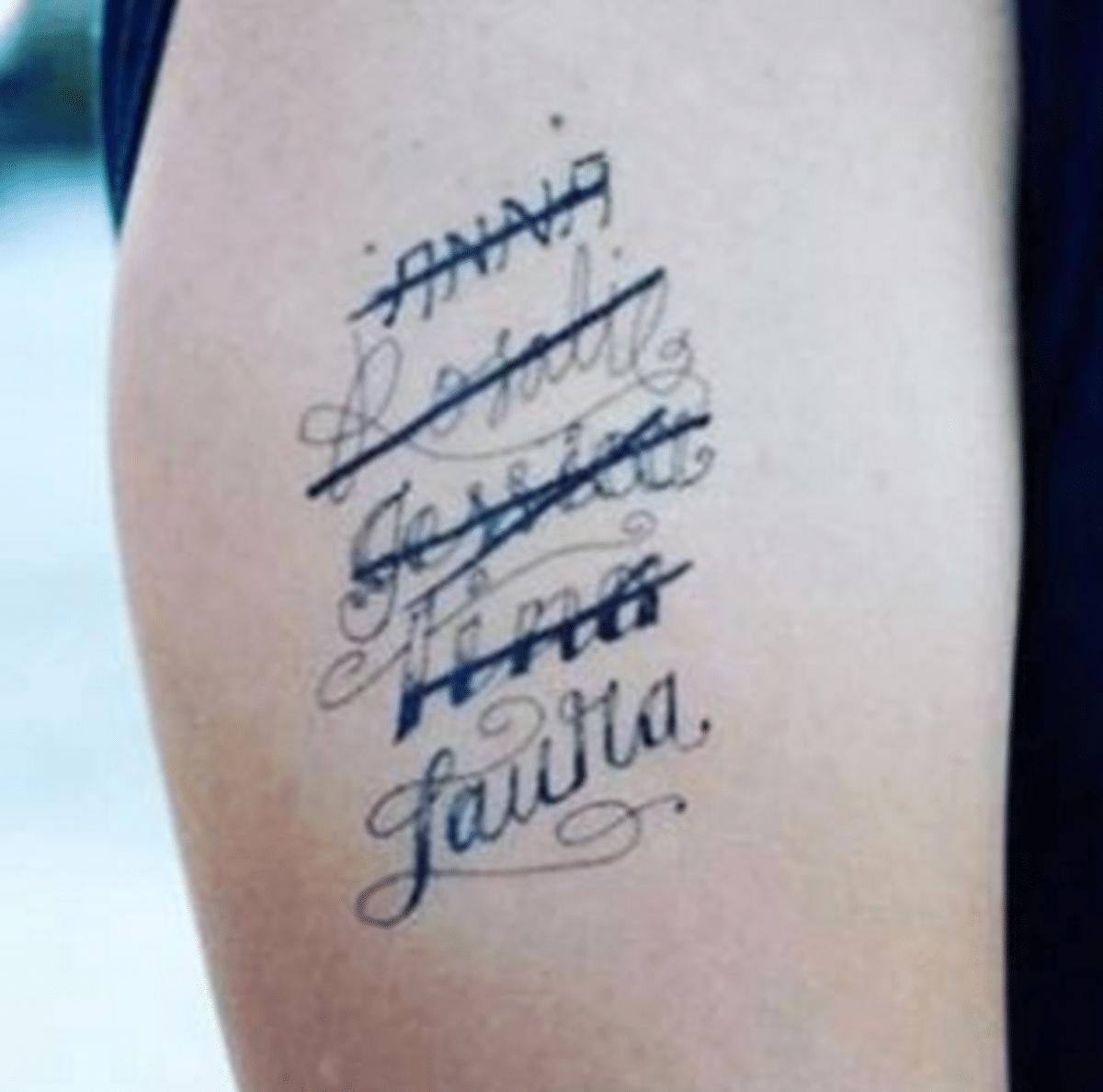 togliere-tatuaggio-brutto-shibumi-torino