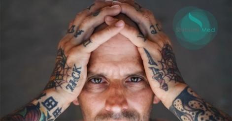 togliere-tatuaggio-torino-shibumi_anteprima