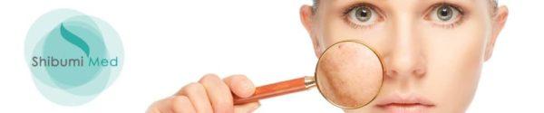 ShibumiMed_trattamento-laser-co2-biopixel-ringiovanimento-viso