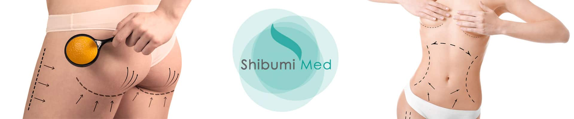 Medicina Estetica Corpo Torino ShibumiMed