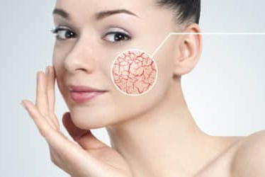 Rimozione Capillari – Angiomi Rubino Torino ShibumiMed